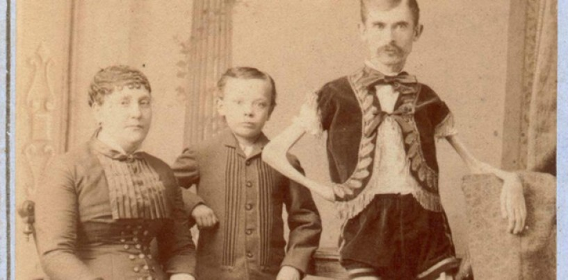 The Human Skeleton… <br/>Vintage Freak Show Cabinet Cards