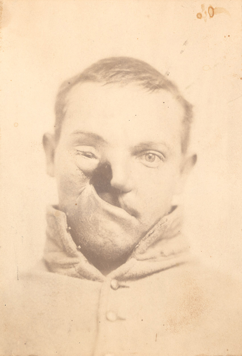 Portraits of Injured Civil War Soldiers
