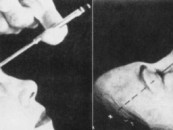 Do you need a lobotomy? <br/>Lobotomy Before and After pics