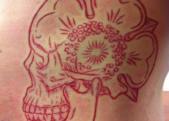 Scars At Their Finest… <br/>Scarification
