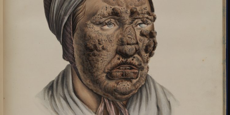 gross stuff from the bible u2026 images of leprosy