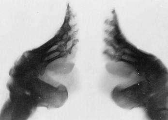 Lotus Feet… Foot Binding Photos!