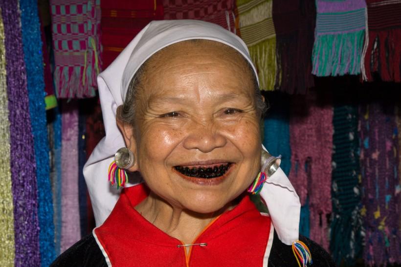 Black-Teeth