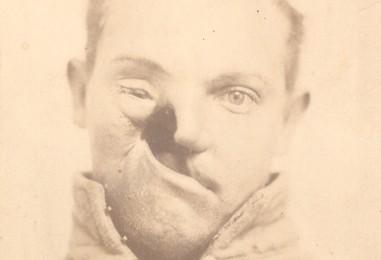 Portraits of Injured Civil War Soldiers
