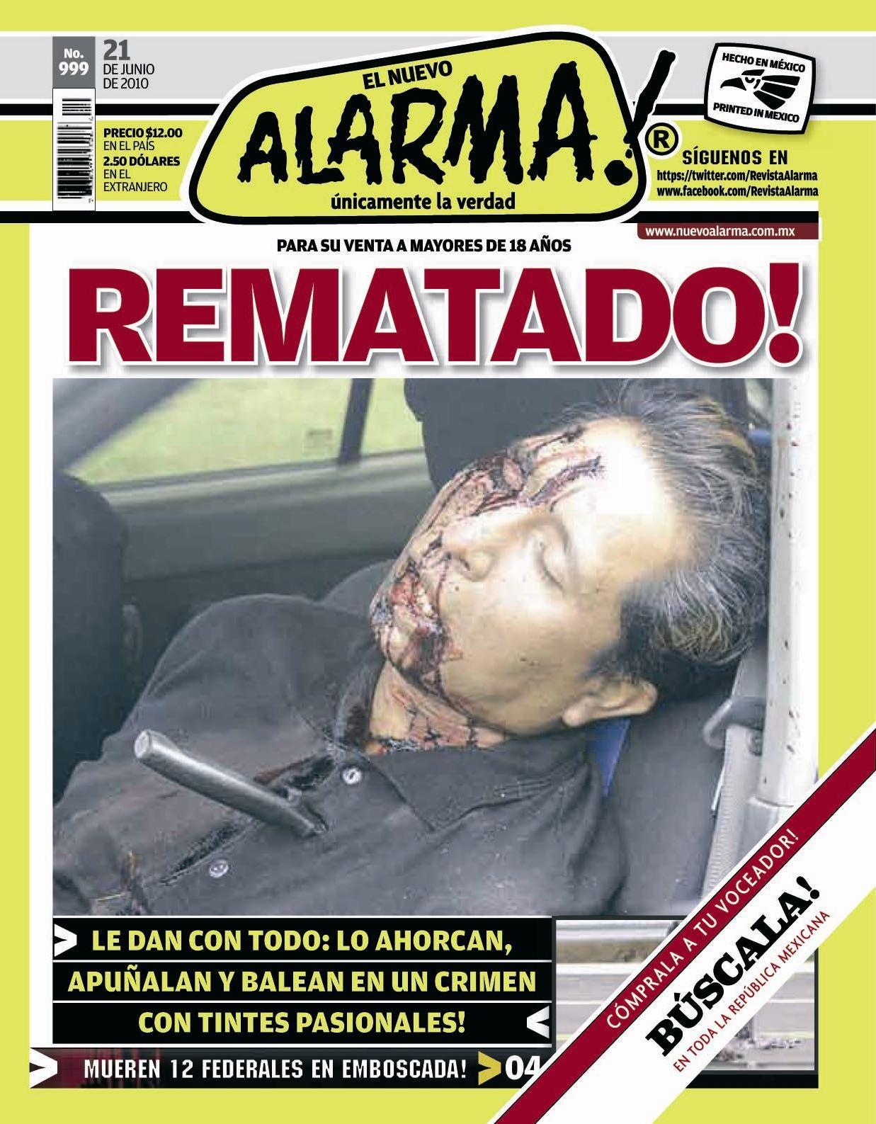 Gore Nsfw Real Life Faces Of Death Alarma Front Pages