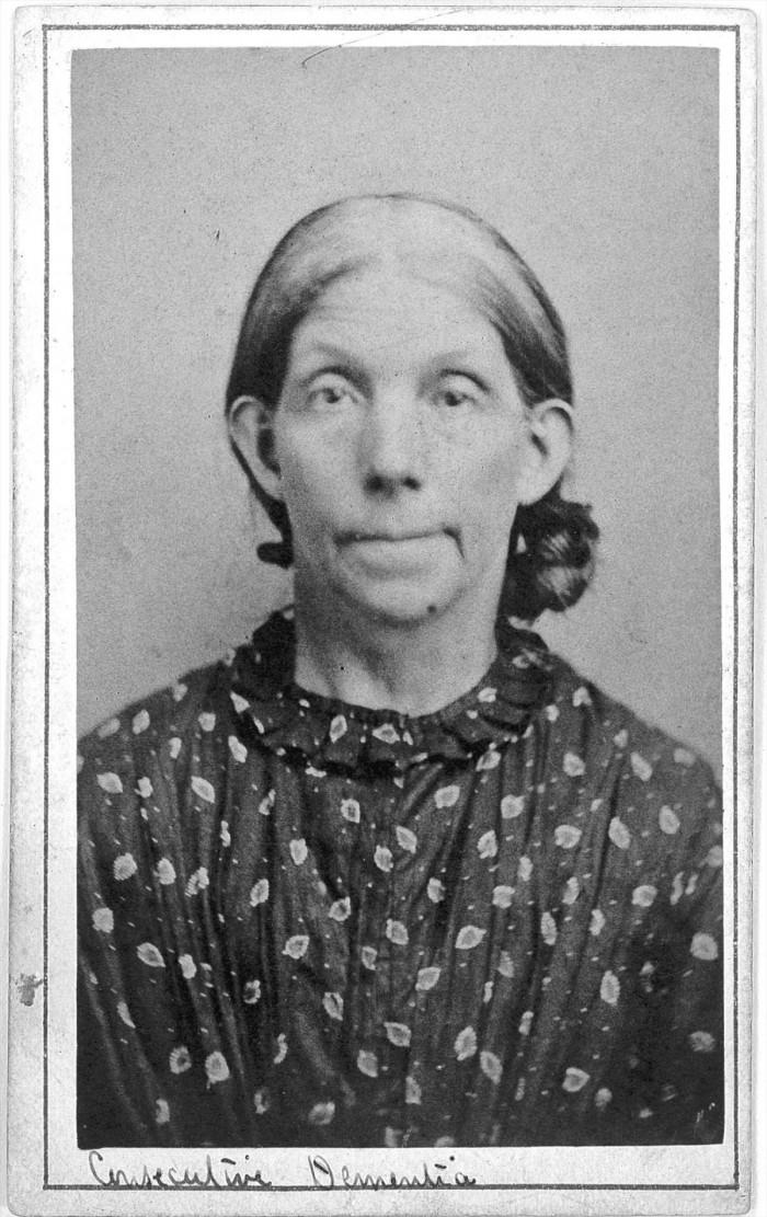 L0019061 'Consecutive dementia' patient at West Riding Lunatic Asylum