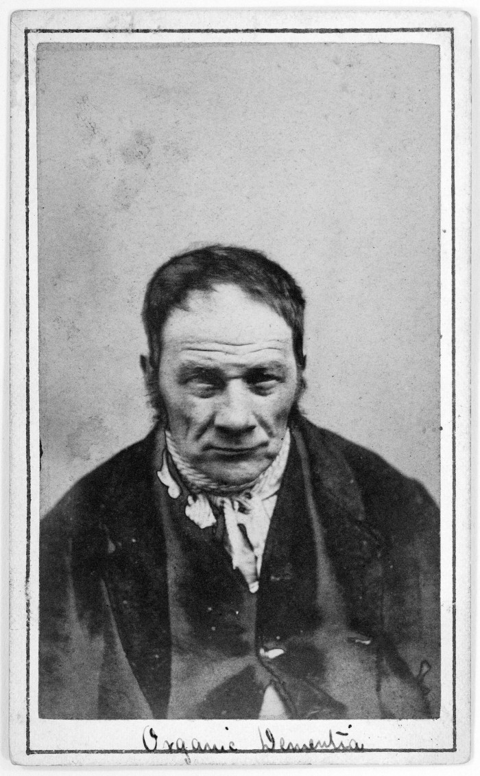 L0019067 Albumen prints: photographs of patients at