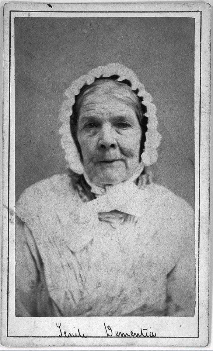 L0019062 'Senile dementia' patient at West Riding Lunatic Asylum