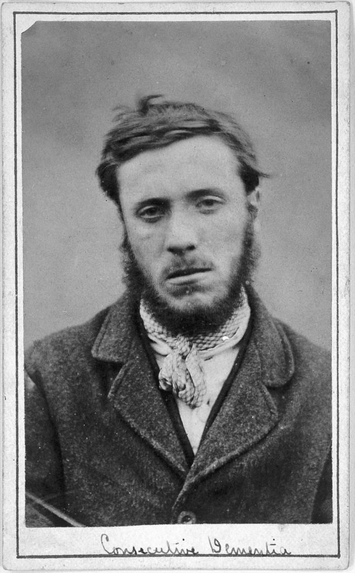 L0019068 Man suffering from consecutive dementia; H. Clarke; 1869