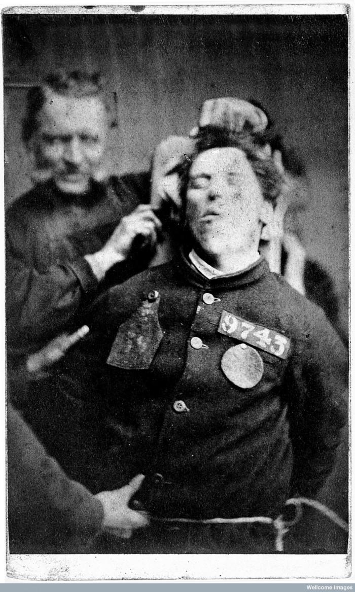 L0019072 West Riding Lunatic Asylum: man restrained by warders; 1869