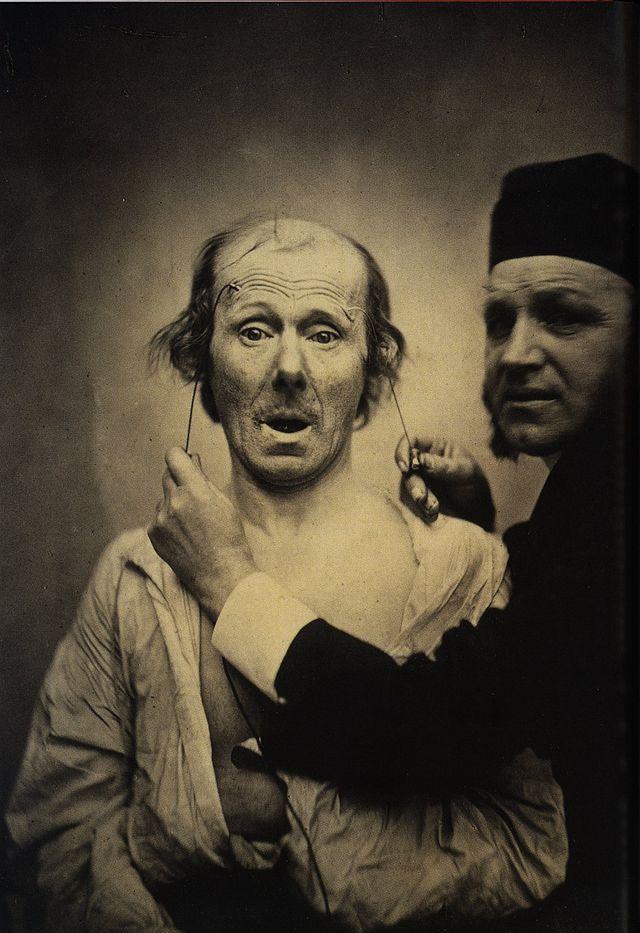 640px-Guillaume_Duchenne_de_Boulogne_performing_facial_electrostimulus_experiments_(3)