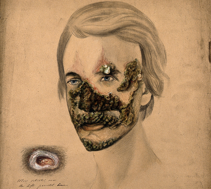 V0009875 Syphilis; severe lesions on face, 1855 Credit: Wellcome Library, London. Wellcome Images images@wellcome.ac.uk http://wellcomeimages.org Pencil, white chalk and watercolour drawing illustrating severe pustule crustaceous lesions on the head of a man suffering from syphilis. The drawing at left shows a detail of the ulcerated lesion above his left eye. Watercolour 1855 By: Christopher D'AltonPublished:  -   Copyrighted work available under Creative Commons Attribution only licence CC BY 4.0 http://creativecommons.org/licenses/by/4.0/