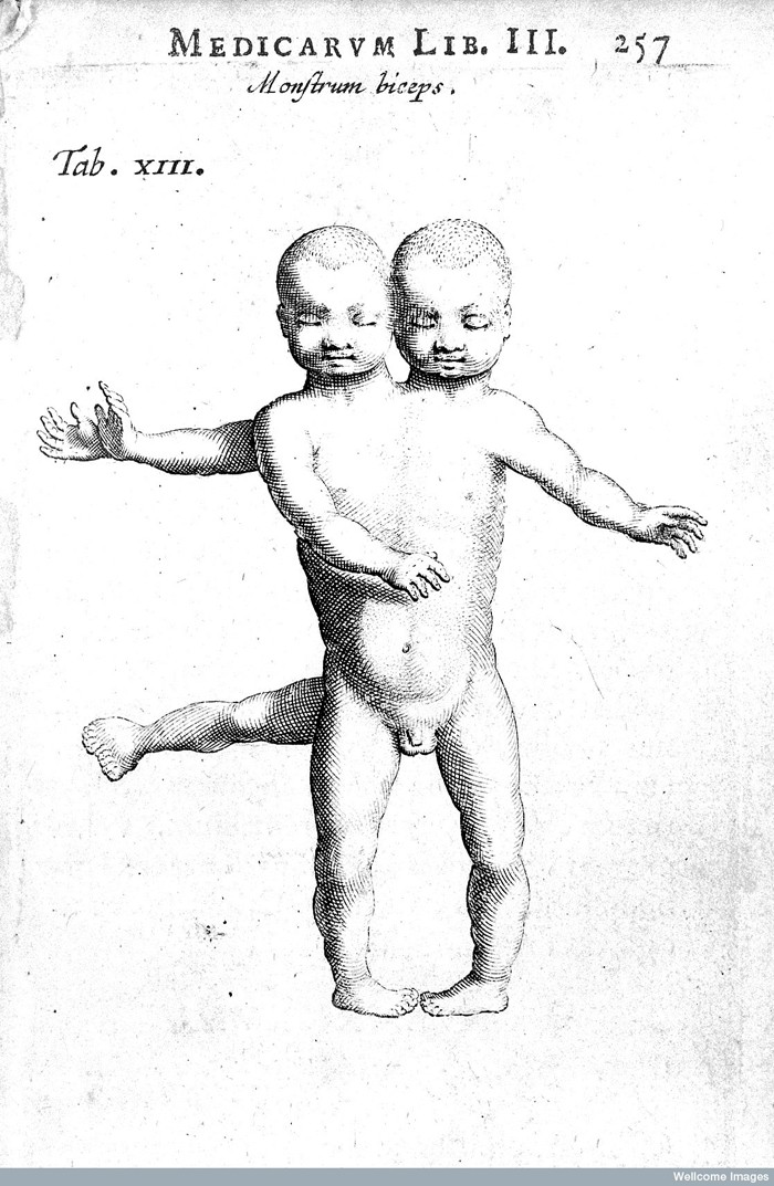 L0016284 Conjoined twins Credit: Wellcome Library, London. Wellcome Images images@wellcome.ac.uk http://wellcomeimages.org Conjoined twins Observationes medicae. Editio nova Nicolaus Tulpius Published: 1652 Copyrighted work available under Creative Commons Attribution only licence CC BY 4.0 http://creativecommons.org/licenses/by/4.0/