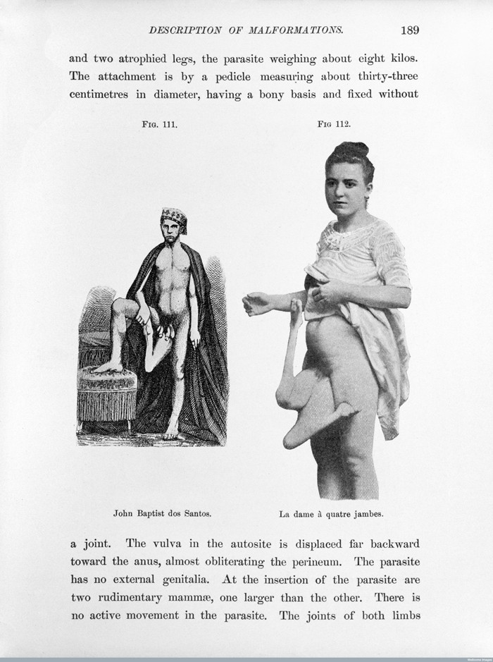 L0027956 B. C. Hirst & G. A. Piersol, Human monstrosities Credit: Wellcome Library, London. Wellcome Images images@wellcome.ac.uk http://wellcomeimages.org John Baptist dos Santos and la dame a quatre jambes. Human monstrosities B.C. Hirst and G.A. Piersol Published: 1893 Copyrighted work available under Creative Commons Attribution only licence CC BY 4.0 http://creativecommons.org/licenses/by/4.0/