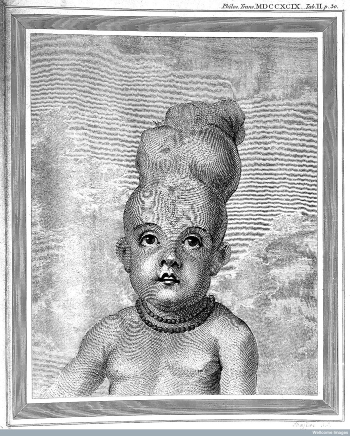 L0029106 E. Home; Account of Child with a double head. Credit: Wellcome Library, London. Wellcome Images images@wellcome.ac.uk http://wellcomeimages.org Child with double headatage twenty months. Account of child with a double head Everard Home Published: 1790 Copyrighted work available under Creative Commons Attribution only licence CC BY 4.0 http://creativecommons.org/licenses/by/4.0/