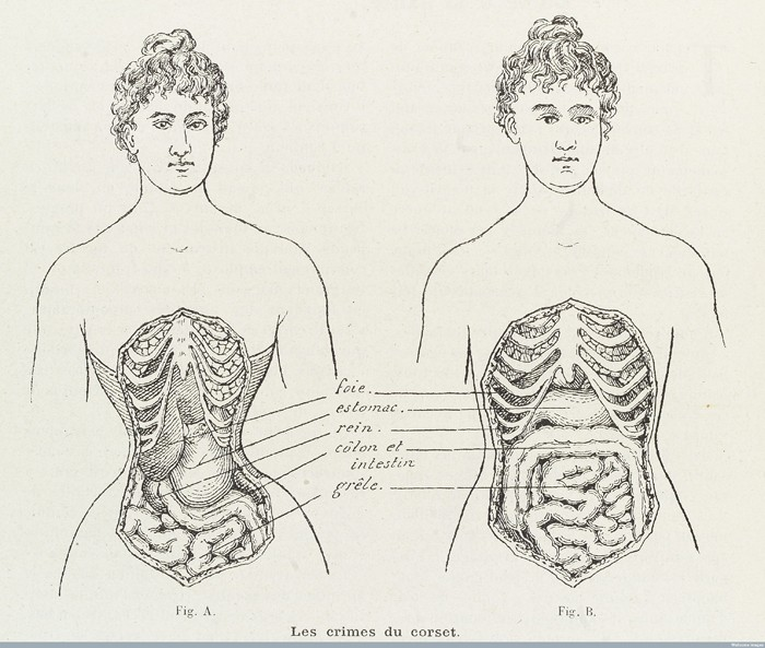 L0038404 Illustrations to denounce the crimes of the corset Credit: Wellcome Library, London. Wellcome Images images@wellcome.ac.uk http://wellcomeimages.org 2 Illustrations to denounce the crimes of the corset and how it cripples and restricts the bodily organs in women. Engraving 1908 Published:  -  Printed: 10th October 1908 Copyrighted work available under Creative Commons Attribution only licence CC BY 4.0 http://creativecommons.org/licenses/by/4.0/