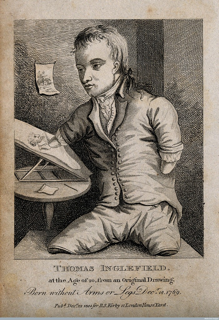 V0007138 Thomas Inglefield, an artist born without limbs, aged twenty Credit: Wellcome Library, London. Wellcome Images images@wellcome.ac.uk http://wellcomeimages.org Thomas Inglefield, an artist born without limbs, aged twenty. Engraving, 1804. 1804 Published: 22 December 1804 Copyrighted work available under Creative Commons Attribution only licence CC BY 4.0 http://creativecommons.org/licenses/by/4.0/