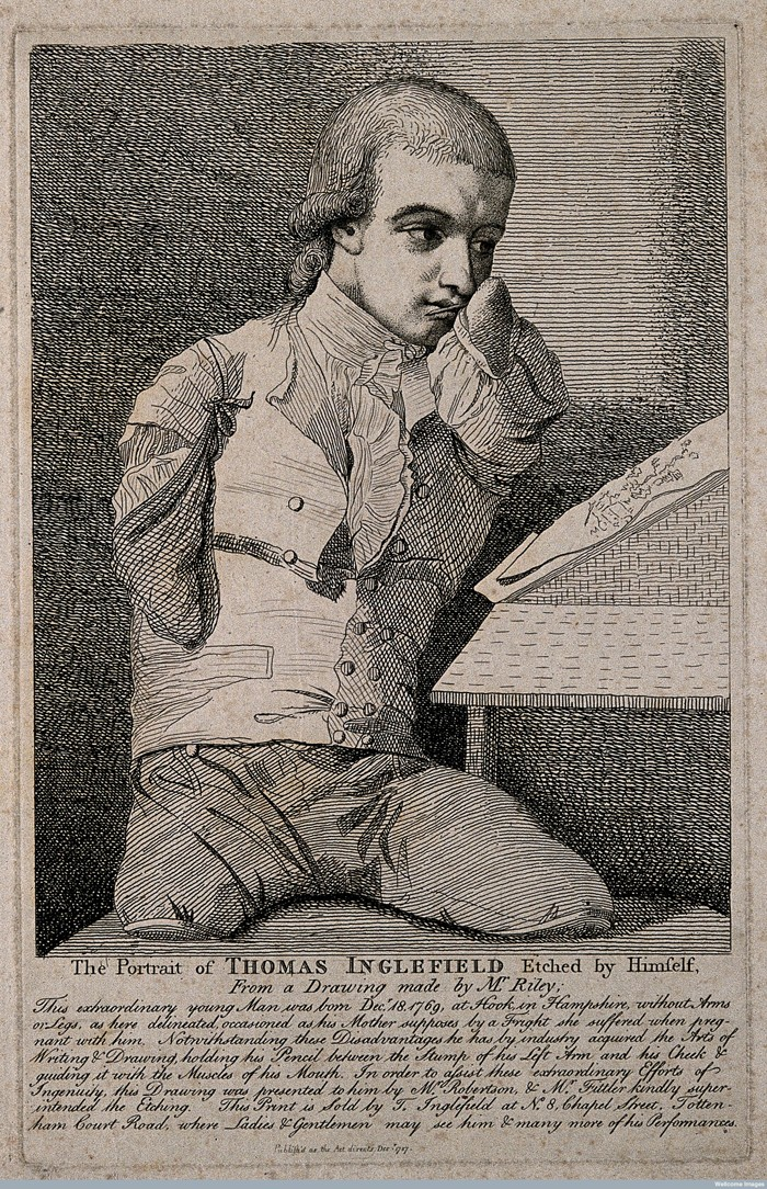 V0007139 Thomas Inglefield, an artist born without limbs. Etching by Credit: Wellcome Library, London. Wellcome Images images@wellcome.ac.uk http://wellcomeimages.org Thomas Inglefield, an artist born without limbs. Etching by T. Inglefield, 1787, after C.R. Ryley. 1787 By: Charles Reuben Ryleyafter: Thomas Inglefield and James Fittler and RobertsonPublished: Publish'd as the Act directs Decr. 1787 Copyrighted work available under Creative Commons Attribution only licence CC BY 4.0 http://creativecommons.org/licenses/by/4.0/