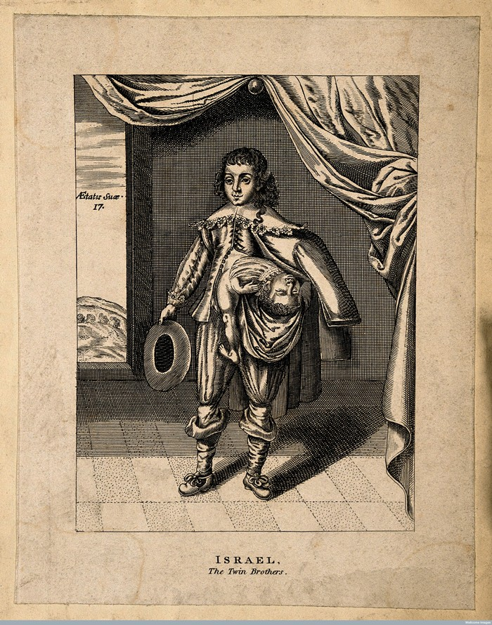 V0007150 Israel, a man with a figure protruding from his chest. Line Credit: Wellcome Library, London. Wellcome Images images@wellcome.ac.uk http://wellcomeimages.org Israel, a man with a figure protruding from his chest. Line engraving. Published:  -  Copyrighted work available under Creative Commons Attribution only licence CC BY 4.0 http://creativecommons.org/licenses/by/4.0/