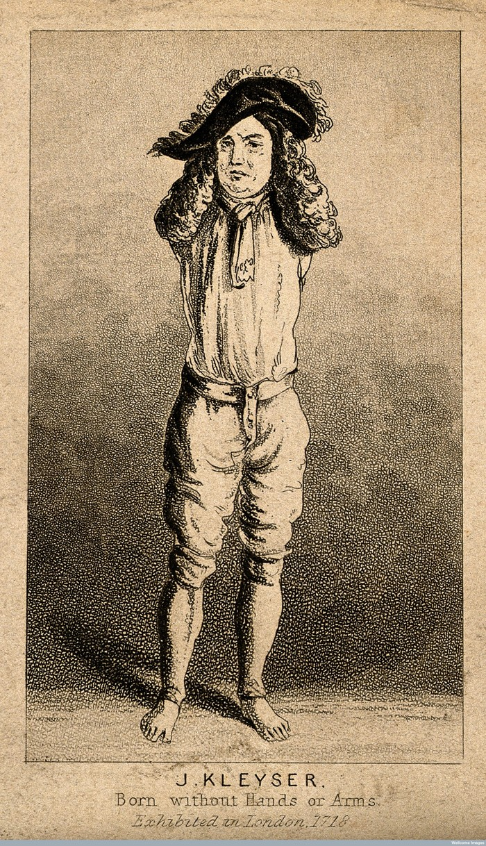 V0007158 Johann Kleyser, a man born without arms. Aquatint. Credit: Wellcome Library, London. Wellcome Images images@wellcome.ac.uk http://wellcomeimages.org Johann Kleyser, a man born without arms. Aquatint. Published:  -  Copyrighted work available under Creative Commons Attribution only licence CC BY 4.0 http://creativecommons.org/licenses/by/4.0/
