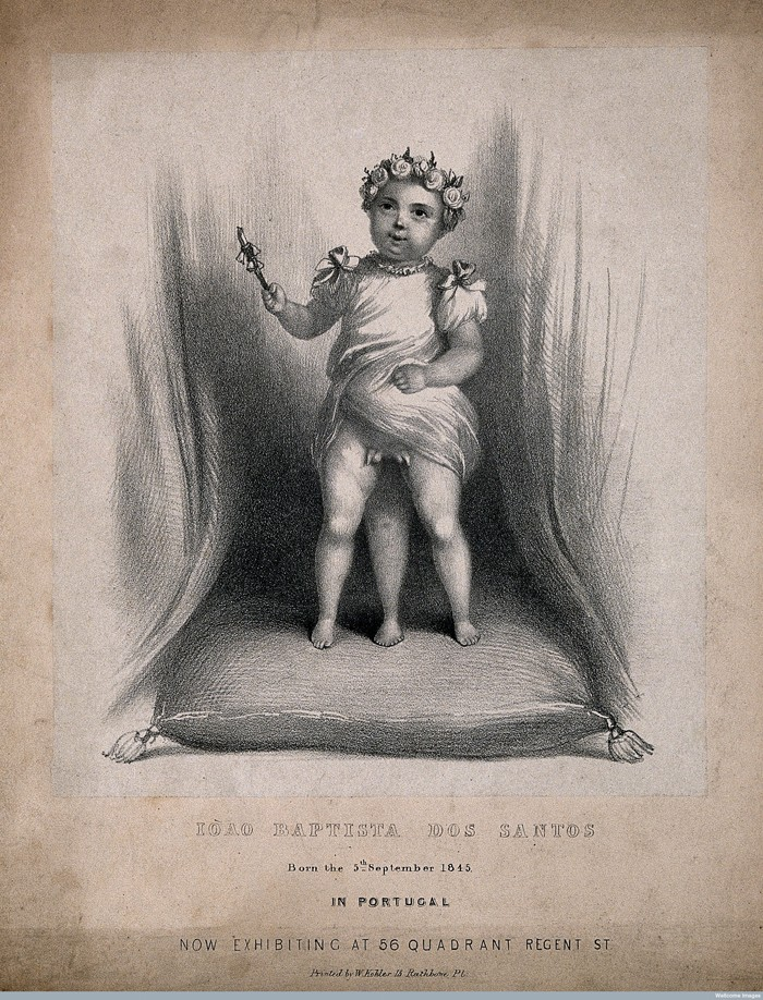 V0007222 Iòao Baptista dos Santos, a diphallic boy with supernumerary Credit: Wellcome Library, London. Wellcome Images images@wellcome.ac.uk http://wellcomeimages.org Iòao Baptista dos Santos, a diphallic boy with supernumerary legs. Lithograph by W. Kohler. after: W KohlerPublished:  -  Copyrighted work available under Creative Commons Attribution only licence CC BY 4.0 http://creativecommons.org/licenses/by/4.0/