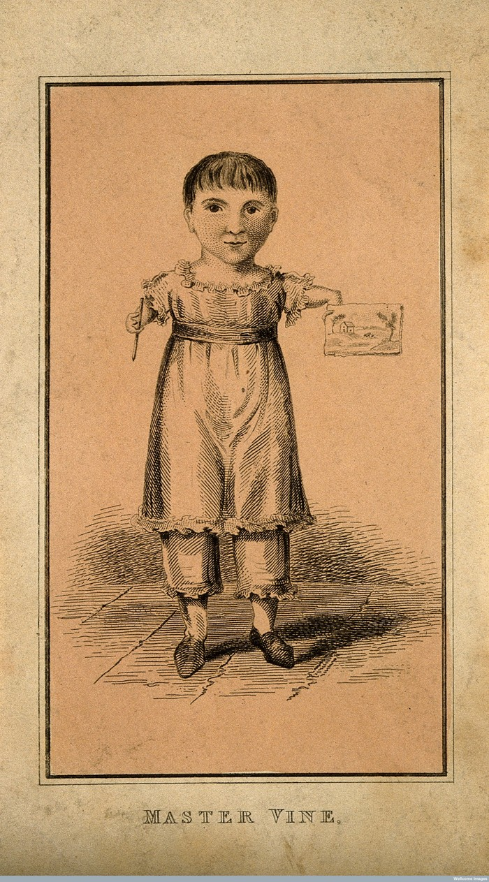 V0007290 Master Vine, a child with deformed arms. Etching. Credit: Wellcome Library, London. Wellcome Images images@wellcome.ac.uk http://wellcomeimages.org Master Vine, a child with deformed arms. Etching. Published:  -  Copyrighted work available under Creative Commons Attribution only licence CC BY 4.0 http://creativecommons.org/licenses/by/4.0/