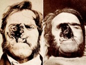 NSFW Gore: Cancer Patients in the 1800s