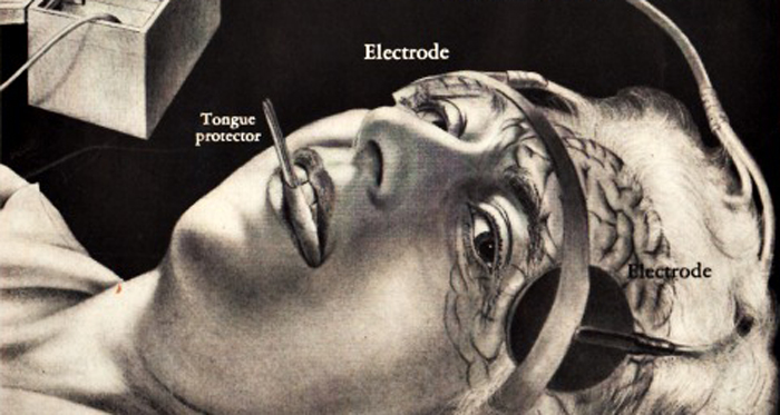 FEAThealth-mental-electroshock-48-swscan01250