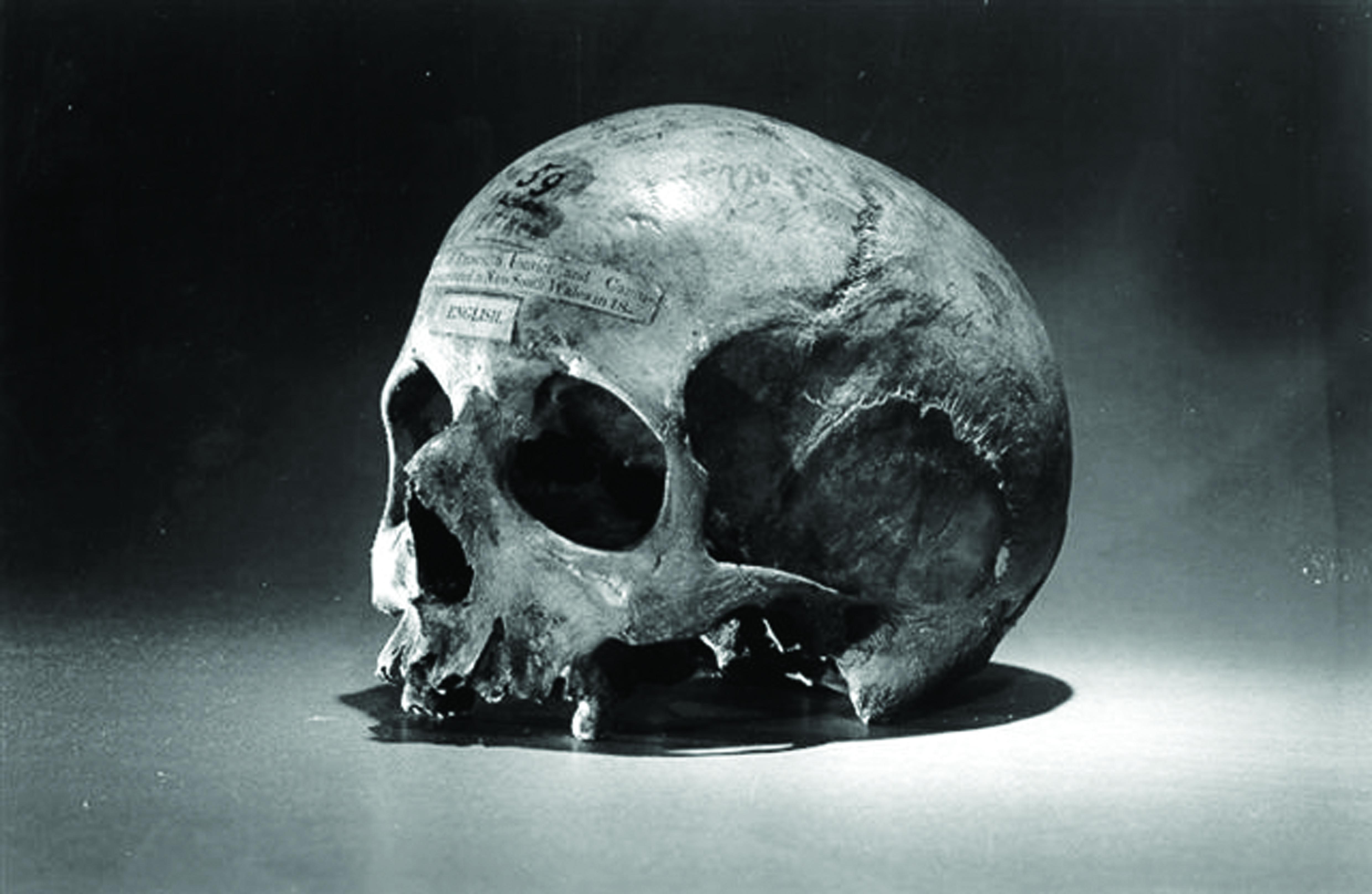 Skull_of_Alexander_Pearce resample
