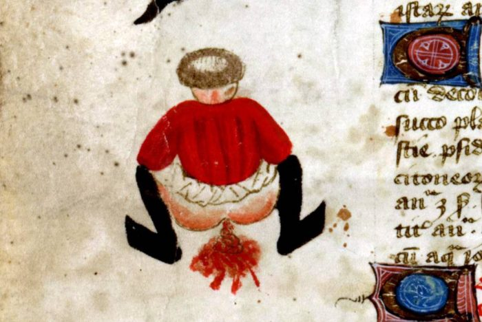 John-Arderne-De-arte-phisicali-et-de-cirurgia-England-ca.-1425.-Stockholm-Kungliga-biblioteket-X-118-1280x856