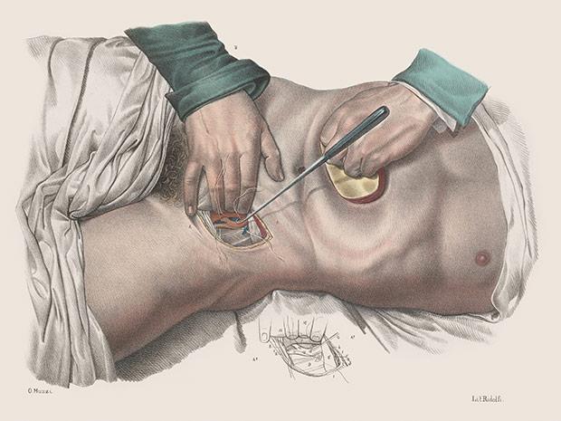 medicalillustration_crucialinterventions-Ligature-of-artery.jpg%0A