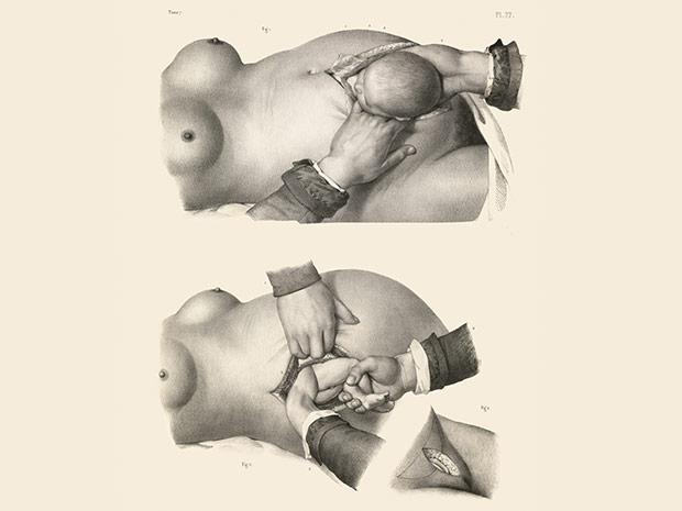 medicalillustration_crucialinterventions-caesarean-section-birth.jpg%0A
