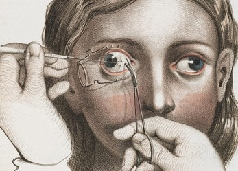 Nuns With Bleeding Eyes! Illustrations of 19th C Surgery