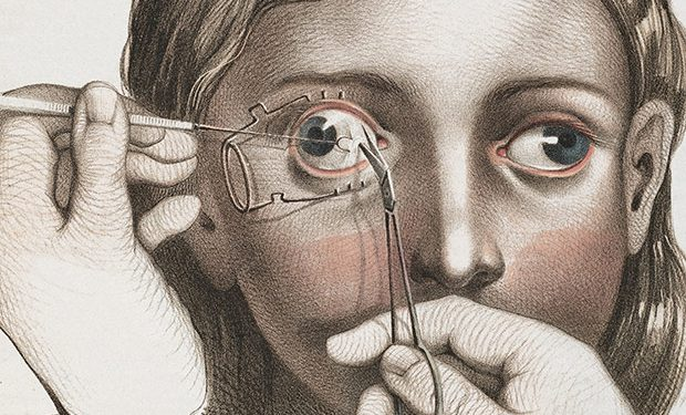 medicalillustration_crucialinterventions-surgery-to-correct-strabismus.jpg%0A