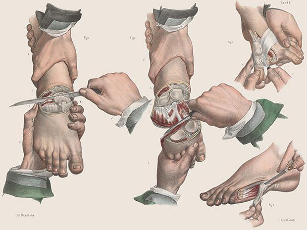 medicalillustration_crucialinterventions-toe-amputation.jpg%0A
