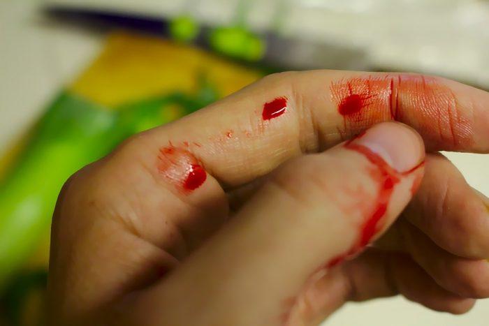 bloodaccident-743036_960_720