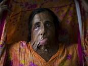 The Evil That Some MEN Do…Emilio Morenatti's Portraits Of Acid Dousing