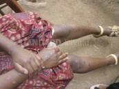 EVIL! Teachers burn  'devil-worshipping' student in Nairobi