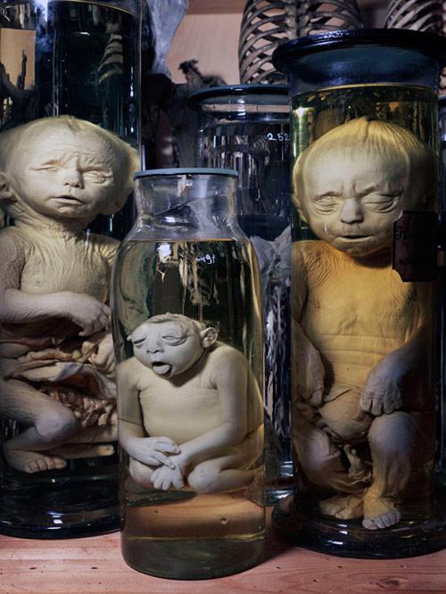 Deformed Babies in Jars... Museum Vrolik