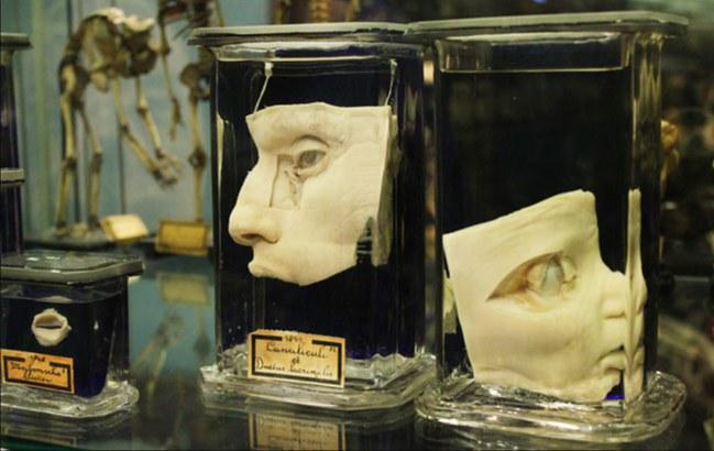 Deformed Babies In Jars Museum Vrolik Cvlt Nation