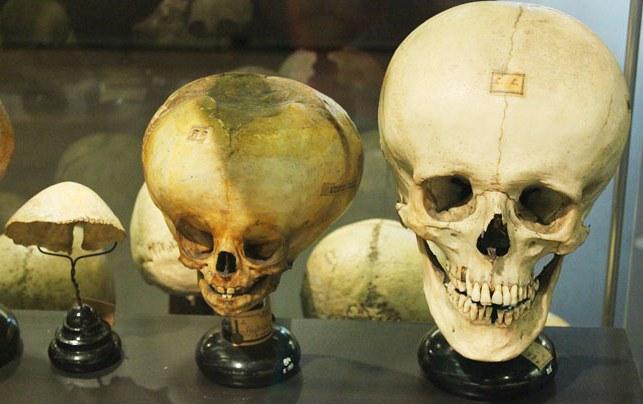 deformed babies in jars u2026 museum vrolik
